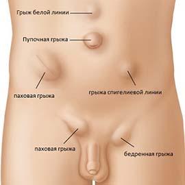 Лікування геморою в Києві - Фото №4