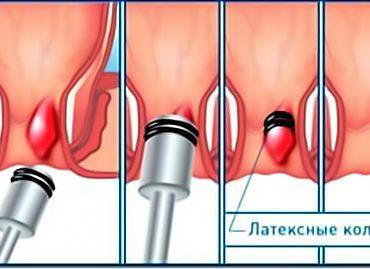 Латексное лигирование кольцами геморроидальных узлов