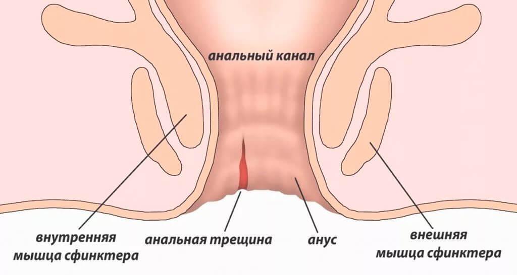 Лечение анальных трещин заднего прохода в Киеве