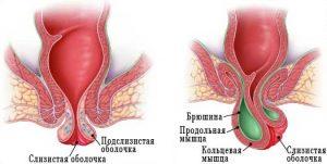 Лечение выпадения прямой кишки в Киеве